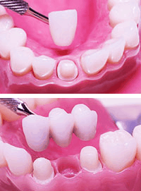 Crowns & Bridges - A picture of a dental crown (above), and a dental bridge (below).